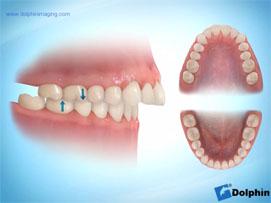Clasificaci n de las deformidades mordida cruzada for Clinica dental jerez de la frontera